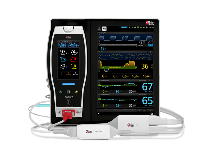Masimo - Capnographie Root SedLine O3 Digital 3-up