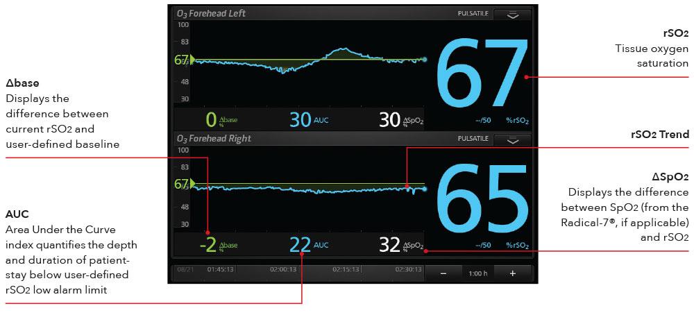 Masimo Pulse Oximeter >> Masimo - Cerebral Oximetry