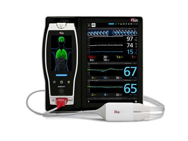 Masimo - Root® with O3® Regional Oximetry