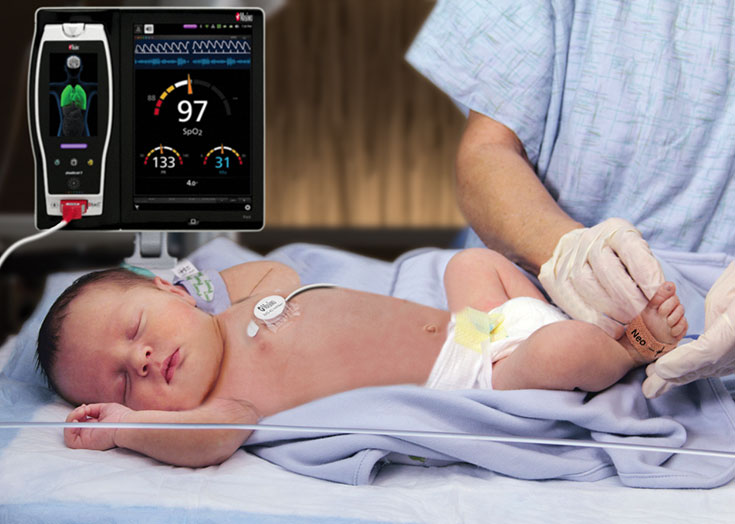 Masimo - Neonatal Application of RAS sensor on right foot